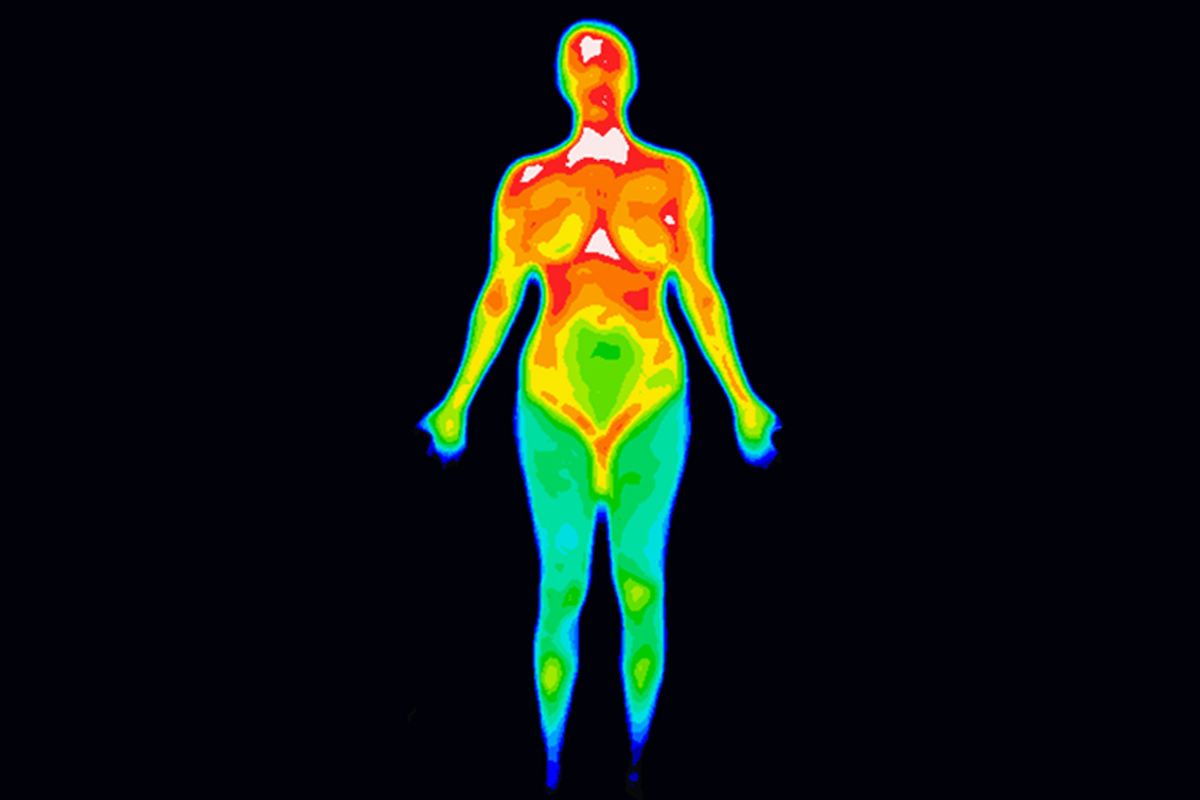medical thermography scan